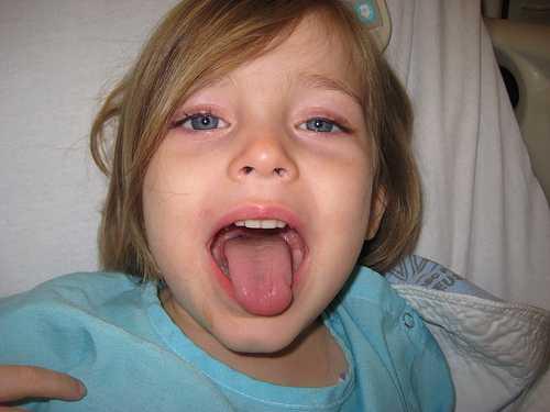 ангина у ребенка в 12 месяцев