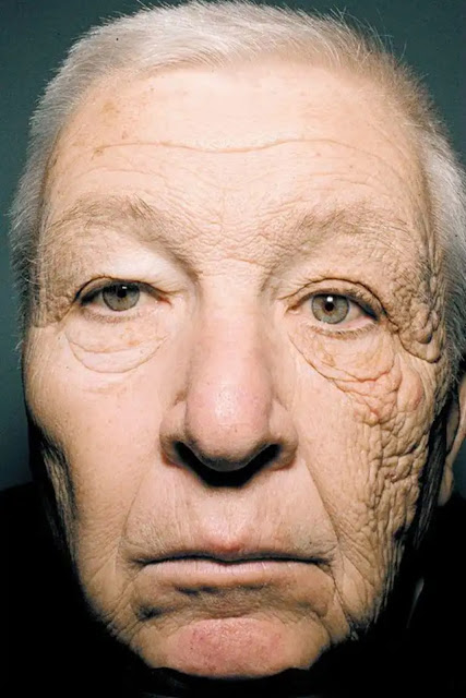 truck driver with sun damage