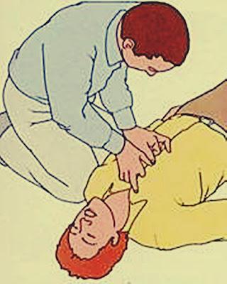 Cara Pernapasan Buatan Dengan Menekan Dada