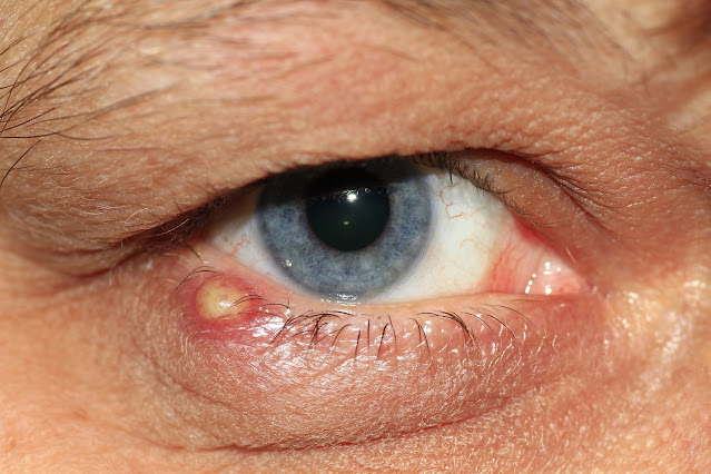 قطرات العين في حالة الحساسية