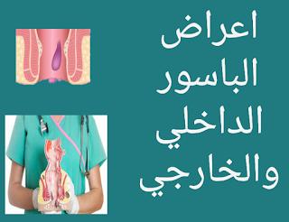 اعراض الباسور الداخلي والخارجي اسبابه وطرق العلاج
