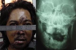 Penyebab Tumor Rahang Yang Jarang Diketahui