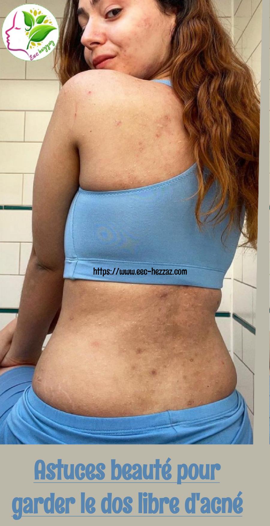 Astuces beauté pour garder le dos libre d'acné