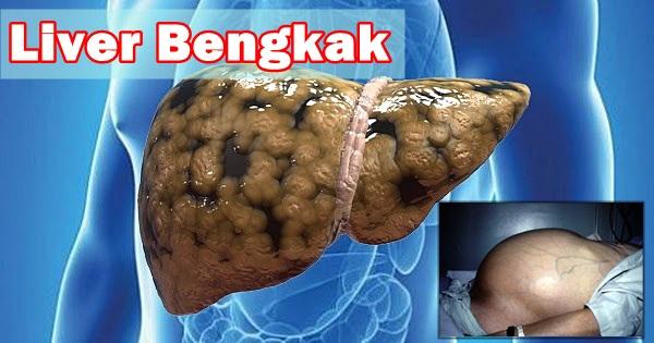 Obat Liver Bengkak Paling Ampuh Se Indonesia