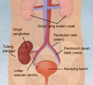 Jenis dan Penyebab Infeksi Saluran Kemih, Infeksi saluran kemih - Gejala, penyebab dan mengobati, Infeksi Saluran Kemih - Penyebab, Gejala, dan Pengobatan - Mediskus