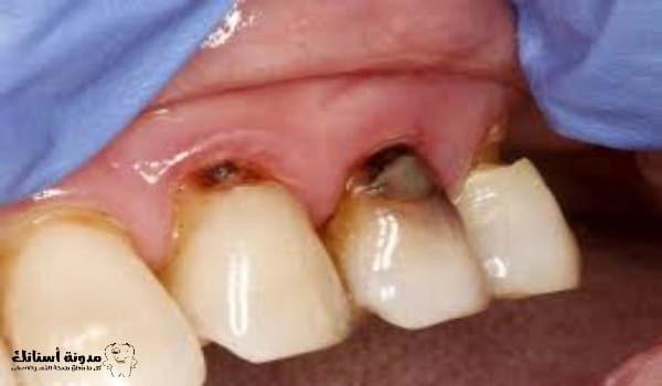 علاج تسوس الأسنان الأمامية .