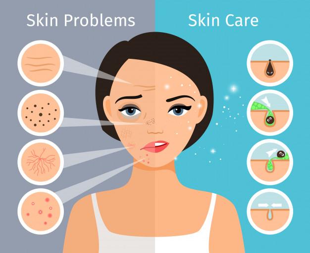 tips merawat kulit wajah berminyak agar tidak berjerawat