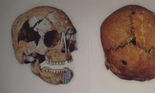 İlk Beyin Ameliyatı 11 Bin Yıl Önce Yapılmış