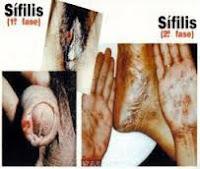 Bahaya Negatif Penyakit Sipilis Yang Dapat Terjadi