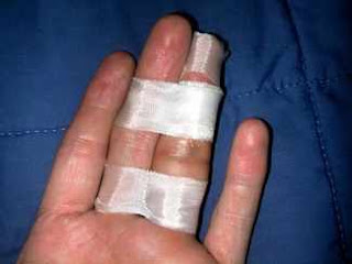 el parmak kırık