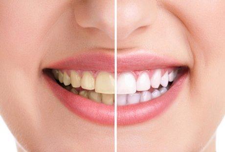 Cara Menghilangkan Karang Gigi Secara Alami E Share