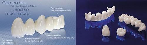 răng sứ sử dụng được bao lâu -8