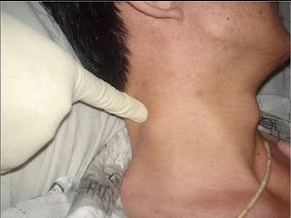 10 Penyebab Pembengkakan di leher