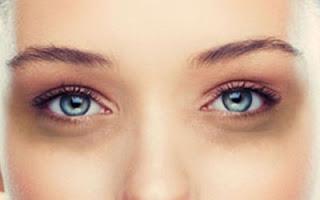 5 Cara Menghilangkan Lingkaran Hitam Pada Mata