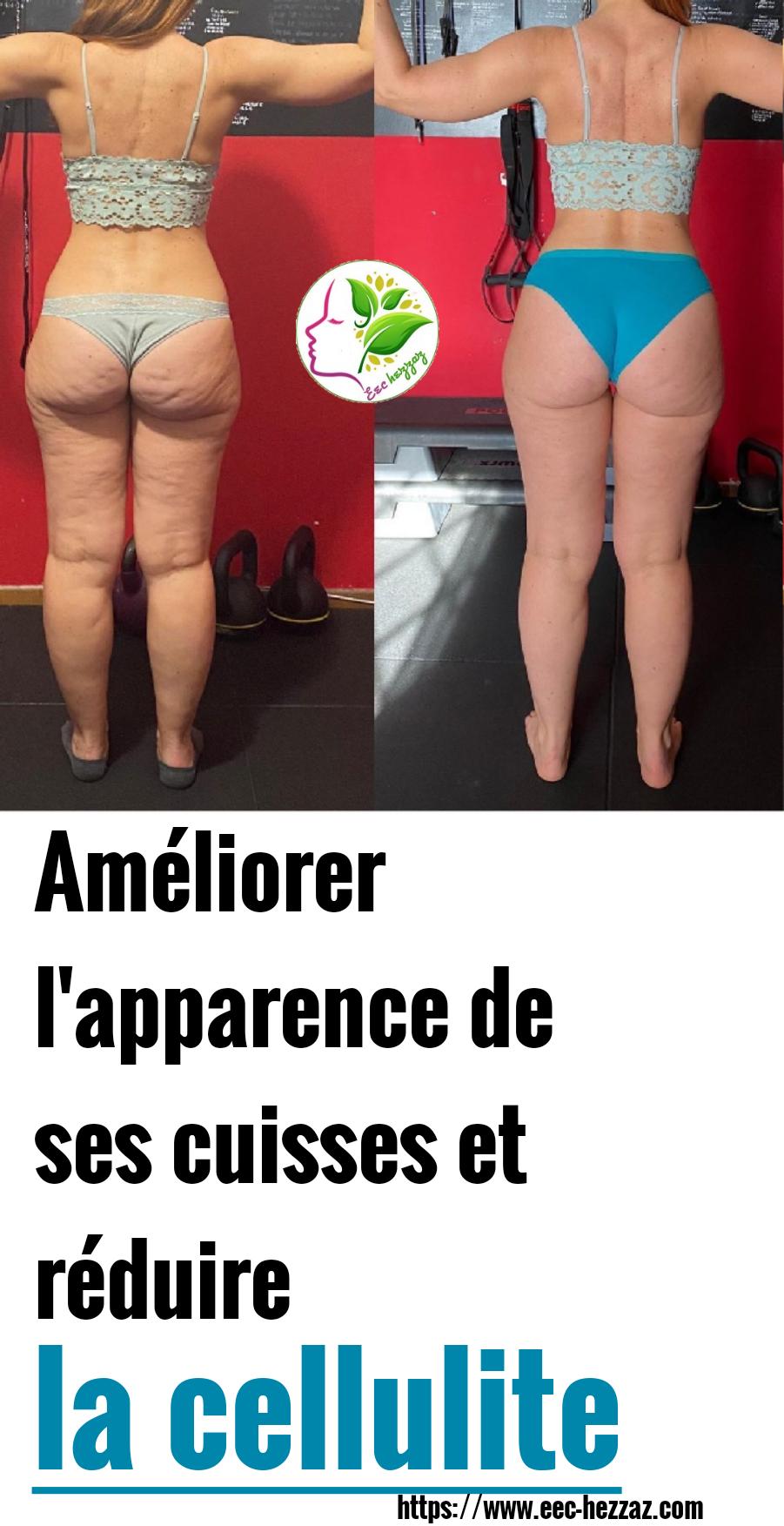 Améliorer l'apparence de ses cuisses et réduire la cellulite