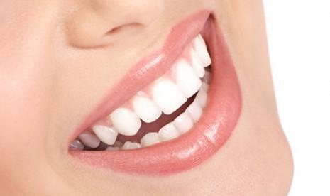 Cara Membuat Gigi Putih Alami Cara Mudah