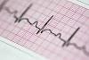 Para qué es un electrocardiograma
