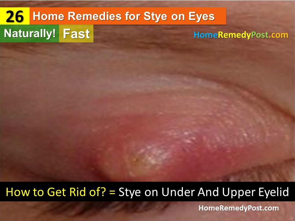 How To Get Rid Of A Stye 26 Home Remedies And Treatments Home
