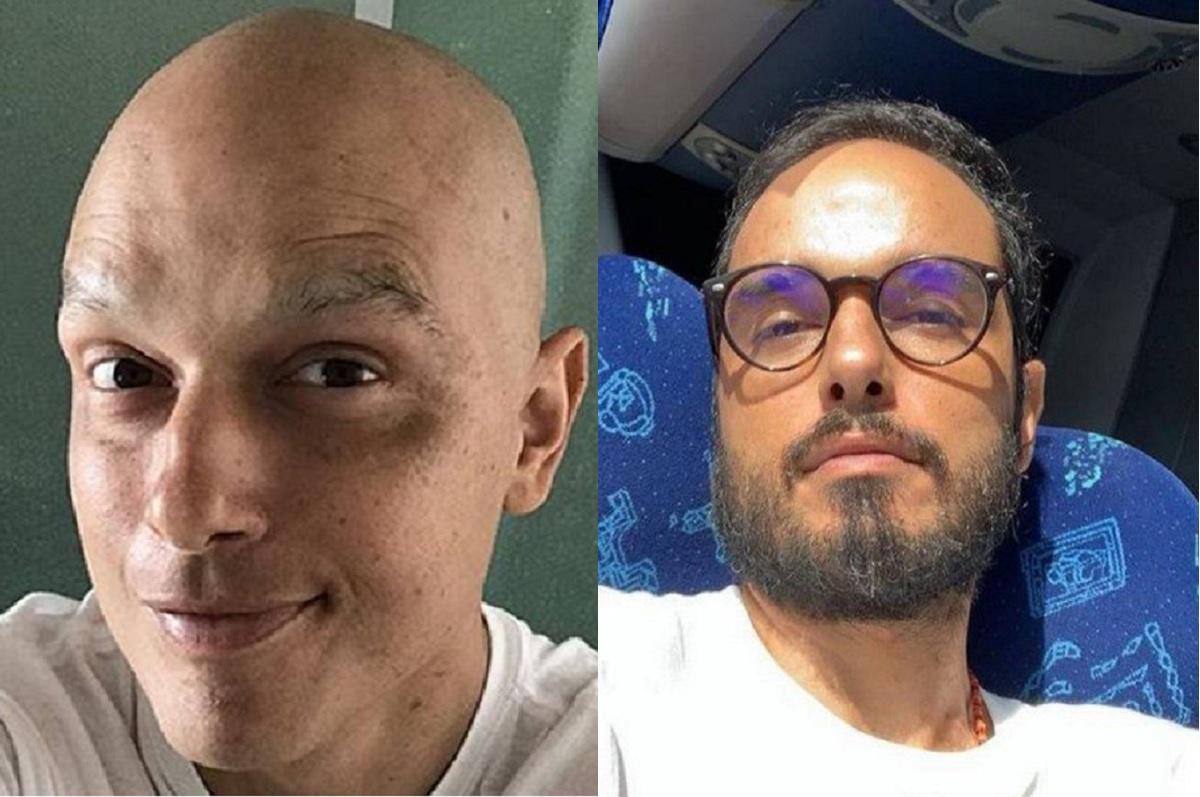 """Ator Léo Rosa mostra cabelos crescidos e diz sobre câncer: """"Estou curado"""""""