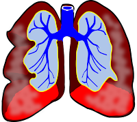 Lungs asthama