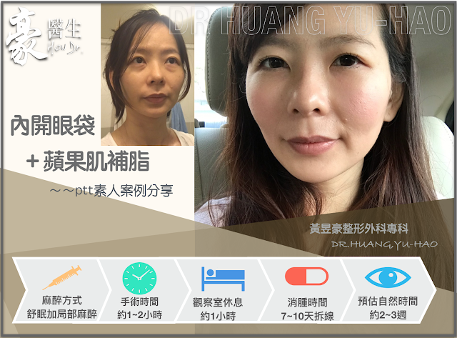 【PTT轉載】內開眼袋+蘋果肌補脂手術,素人案例分享