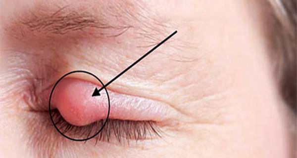 ceaiul de musetel trateaza eficient urcioarele ochilor