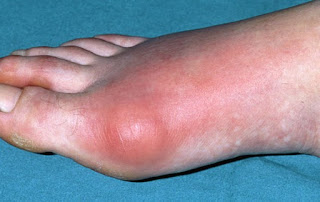 Gout Causes, Symptoms, Complications and Chances Of Acquiring It