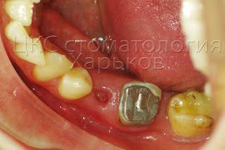 Фото зуба с культевой вкладкой