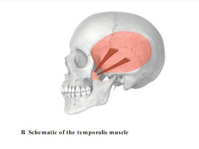 Technique of stretching the temporalis muscle.