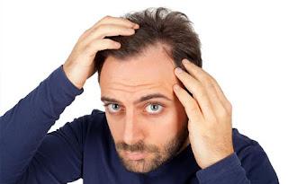 erkeklerde saç dökülmesi, erkek tipi saç dökülmesi