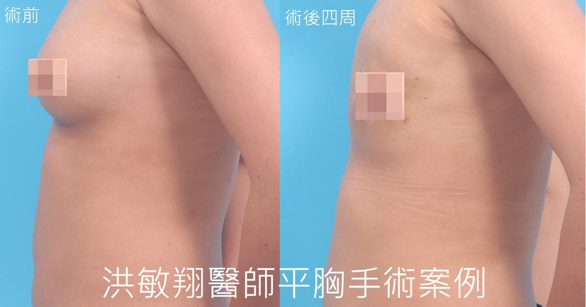 甜甜圈平胸手術案例側面