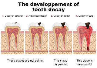 How to prevent and treat teeth decay