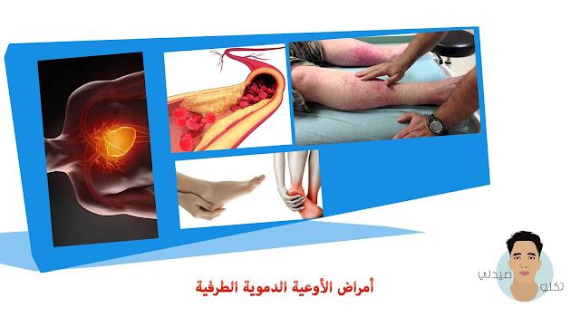 أمراض الأوعية الدموية الطرفية