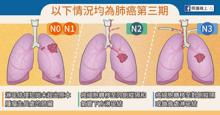 肺癌第三期