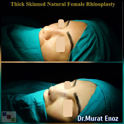 Rhinoplasty In Istanbul,Nose job in İstanbul,Nose aesthetic surgery Turkey,