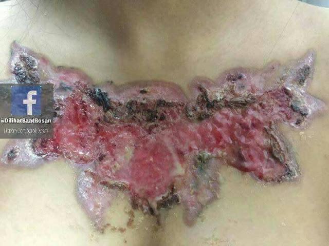 Efek Tato Pada Kulit Gadis Ini yang Sangat Mengerikan...