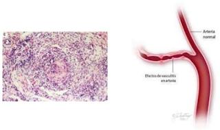 gangguan-vaskular-poliartritis-nodosa