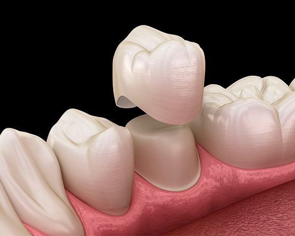 Bọc răng sứ có đau không?