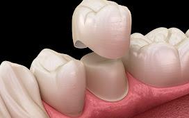 Bọc răng sứ có đau không? Những ưu điểm khi bọc răng sứ