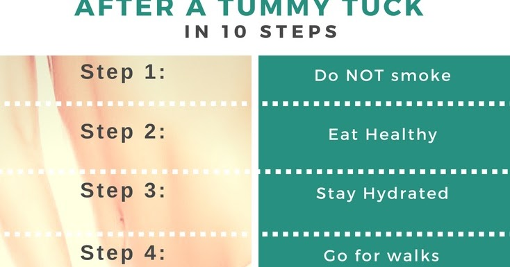 Why There Is Need of Tummy Tuck Procedure?