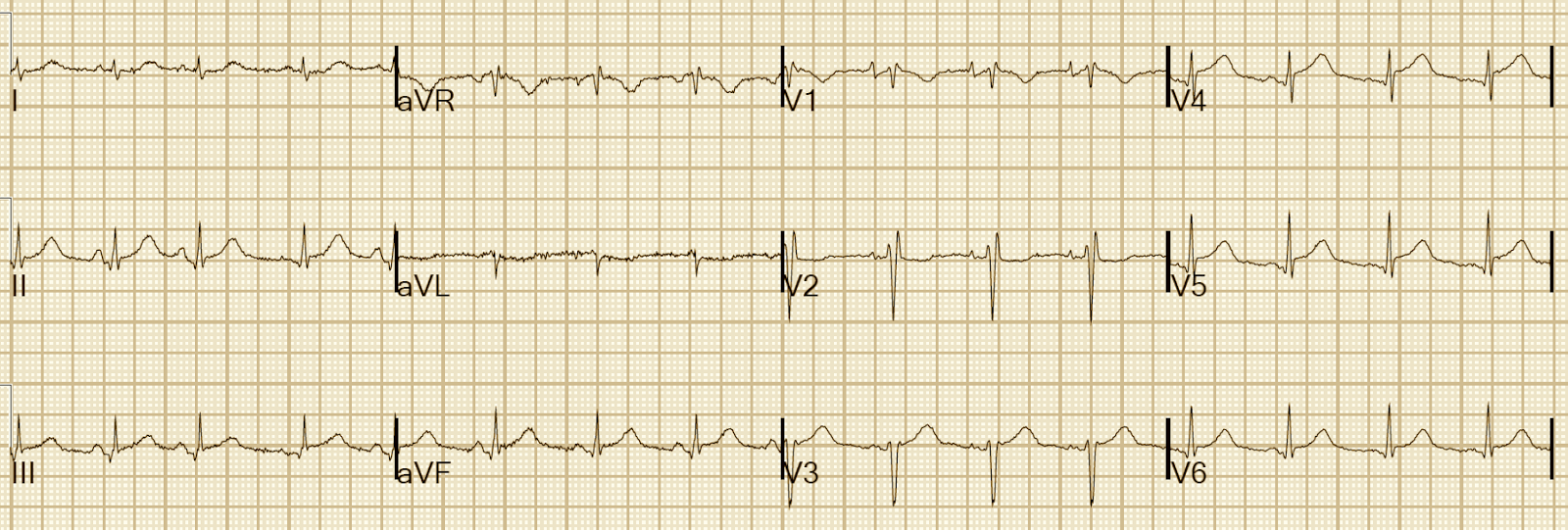 Dr. Smith's ECG Blog: Pericarditis? Or STEMI? The difference can ...