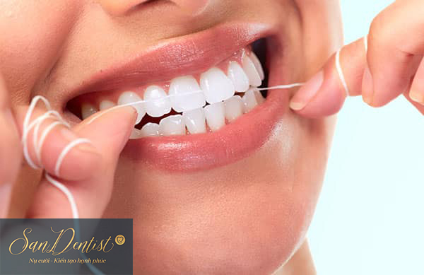 Phủ răng sứ mất bao lâu thì hoàn tất mà đảm bảo bền đẹp?