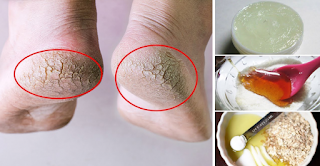 Dry Skin Or Crevices