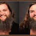 Remember the lady with beards like a man? See her face after shaving