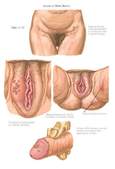LESIONS OF HERPES SIMPLEX