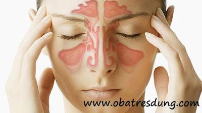Obat Resdung Herbal