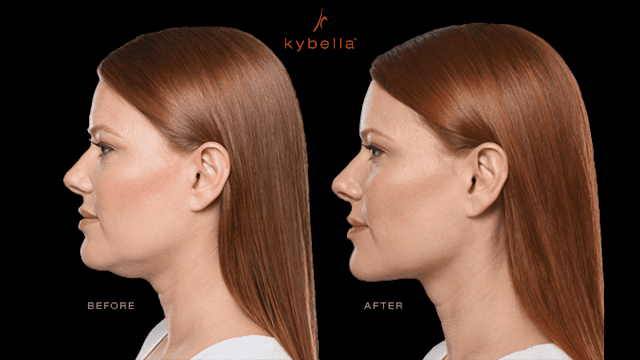 How does kybella work for chin fat By Barbies Beauty Bits