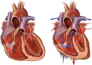 cara menyembuhkan gagal jantung