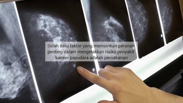 Elak Kanser Payudara! 5 Jenis Makanan Yang Perlu Diamalkan Khas Buat Wanita