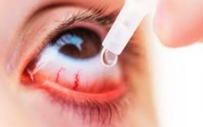 Should Acute Conjunctivitis Treatment Require Topical Antibiotics?